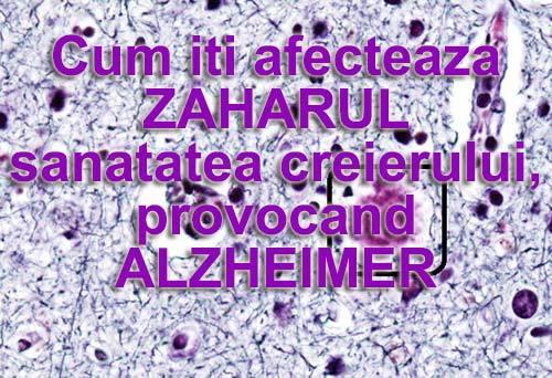 afis2
