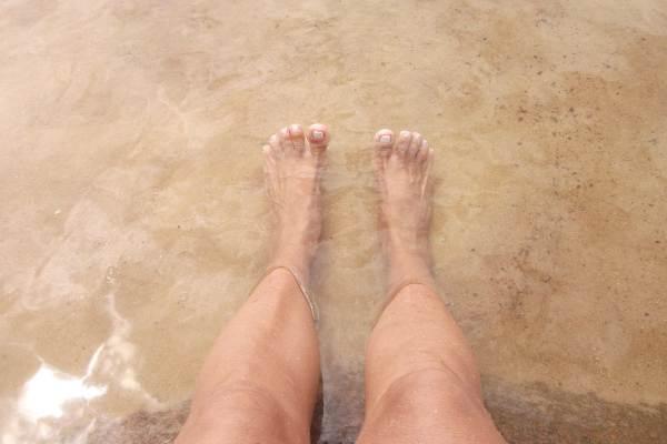 plajă cu venele varicoase)