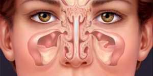 9 metode naturale pentru ameliorarea rapida a inflamatiei sinusurilor