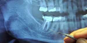 Atentie: 97% din pacientii care se afla intr-un stadiu terminal al CANCERULUI au facut acest tratament stomatologic!